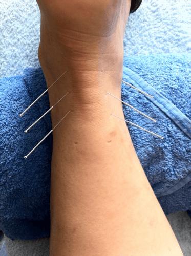Baut Akupunktur hauptsächlich auf dem Placebo-Effekt auf? Den Patienten wird es egal sein, solange es hilft!